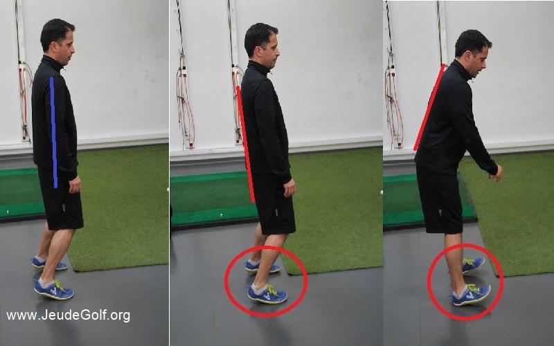 Compensations liées à une mauvaise posture