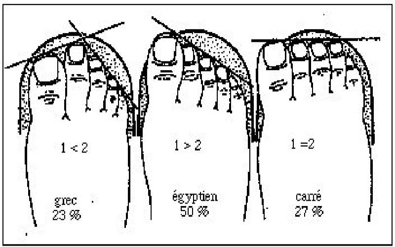 Formes des pieds